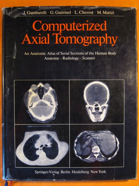Image for Computerized Axial Tomography: An Anatomic Atlas of Serial Sections of the Human Body. Anatomy, Radiology, Scanner
